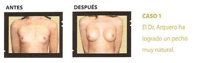 01_sp_u18_caso1