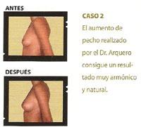 01_sp_u18_caso2