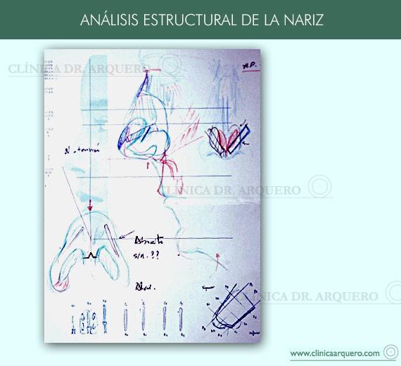 analisis_estructural_nariz