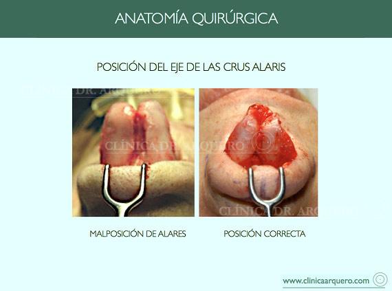 anatomia_quirurgica6