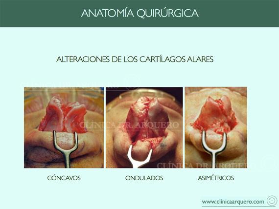 anatomia_quirurgica7