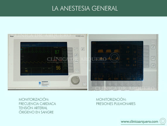 anestesia3