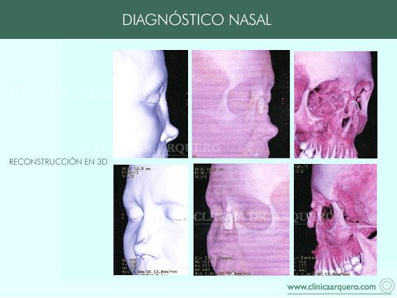 diagnostico_nasal