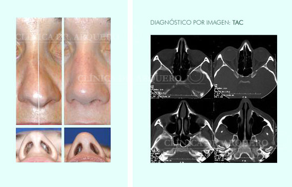 diagnostico_nasal_por_imag3