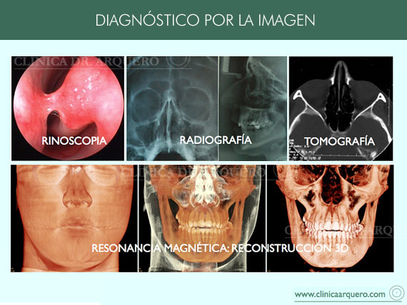diagnostico_nasal_por_image