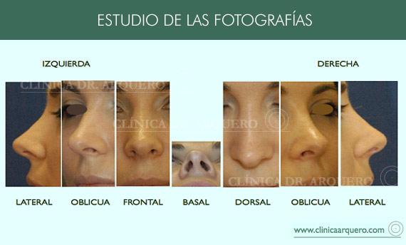 estudio_fotografias_nariz