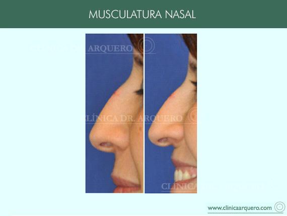musculatura_nasal1