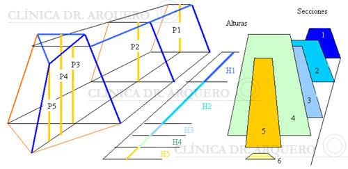 nariz_por_piramides