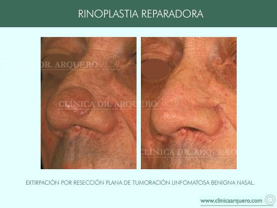 rinoplastia_reparadora