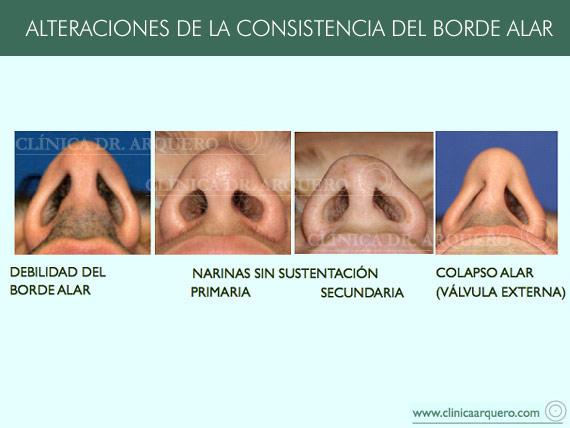alteraciones_borde1