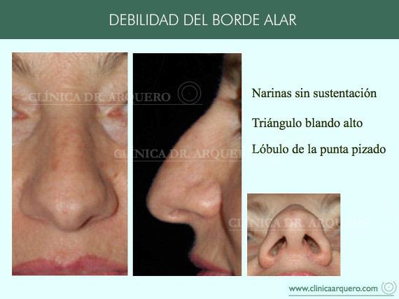alteraciones_borde3