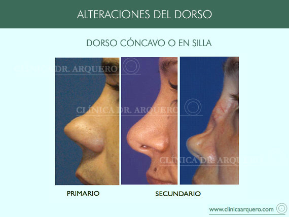 alteraciones_dorso02