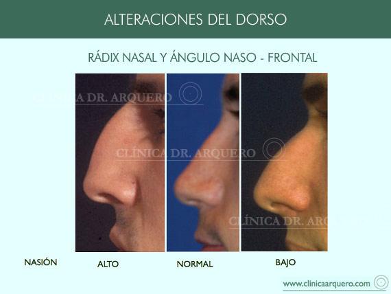alteraciones_dorso03