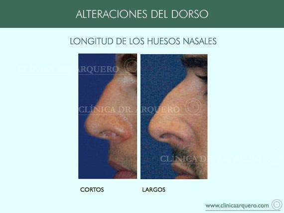 alteraciones_dorso04