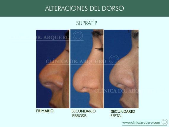 alteraciones_dorso05