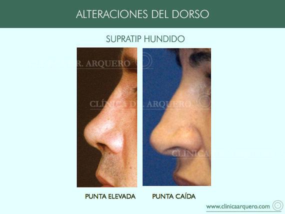 alteraciones_dorso06