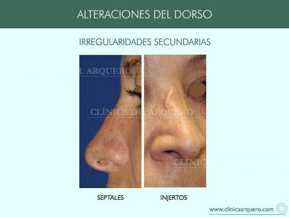 alteraciones_dorso07