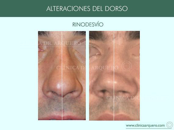 alteraciones_dorso08