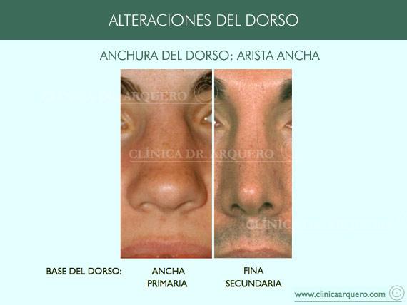 alteraciones_dorso09