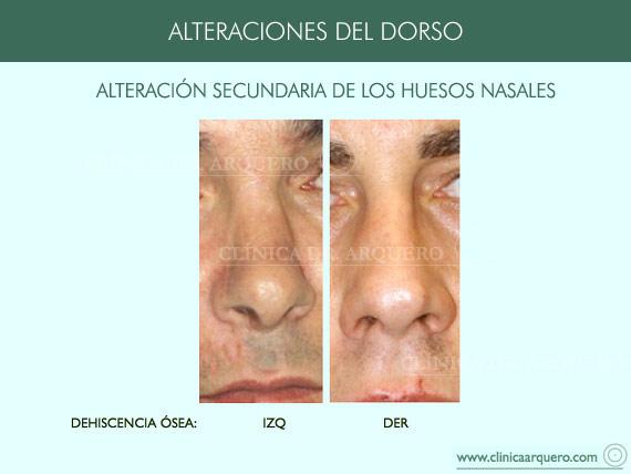 alteraciones_dorso10