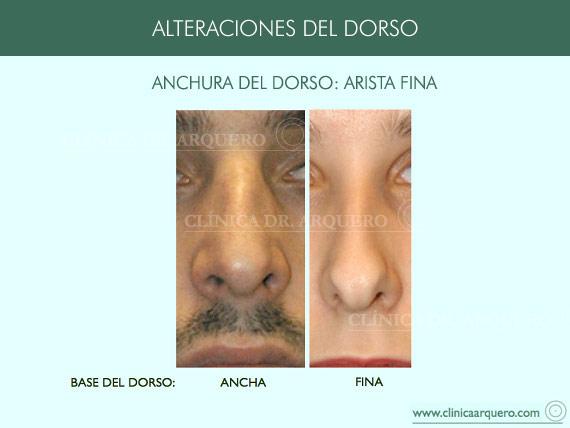 alteraciones_dorso11