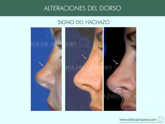 alteraciones_dorso14