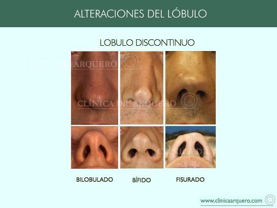 alteraciones_lobulo2