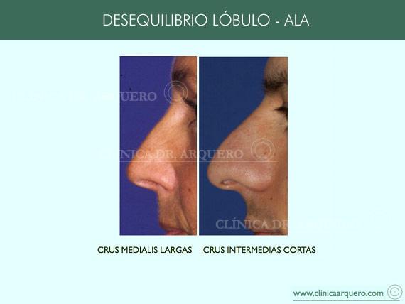 alteraciones_lobulo3