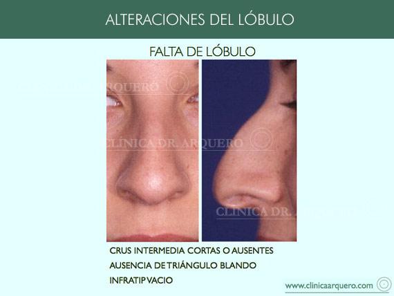 alteraciones_lobulo4
