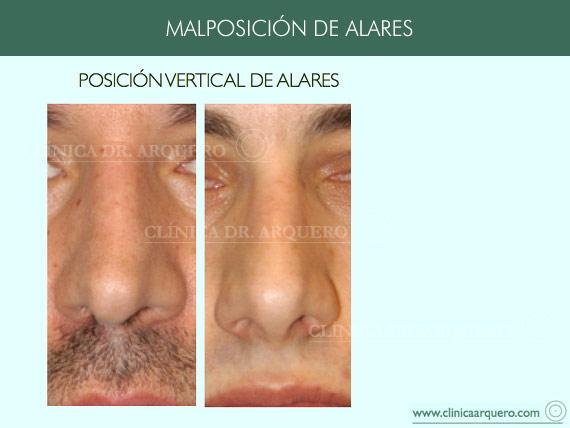 alteraciones_posicion1