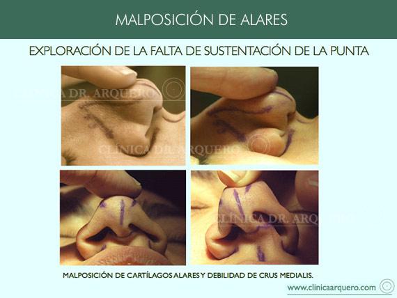 alteraciones_posicion2