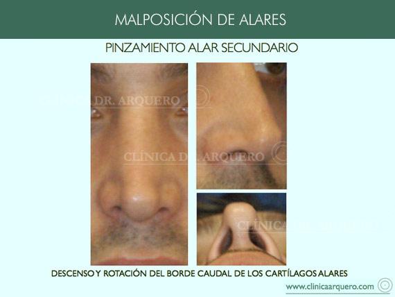 alteraciones_posicion3