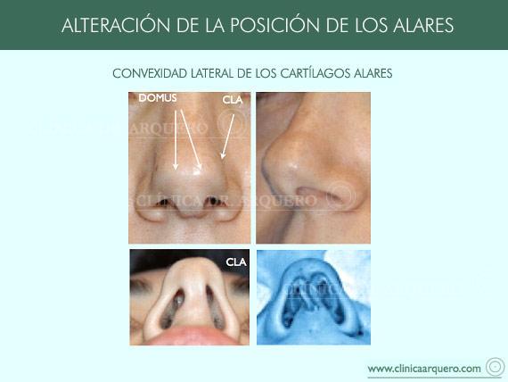 alteraciones_posicion5