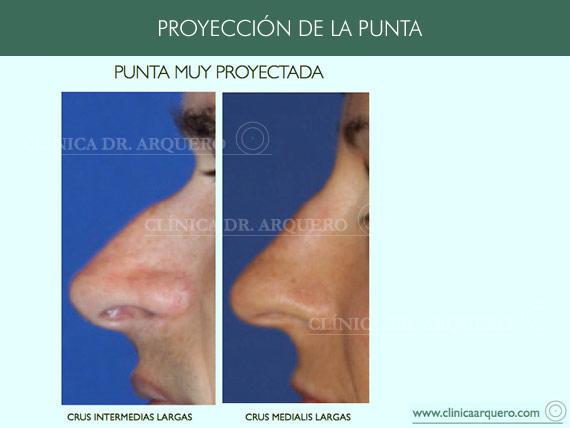 alteraciones_proyeccion