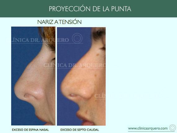 alteraciones_proyeccion2