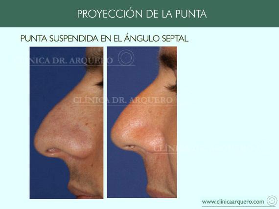 alteraciones_proyeccion3