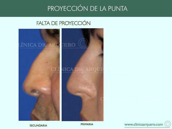 alteraciones_proyeccion4