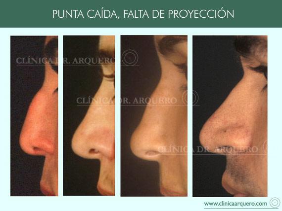 alteraciones_proyeccion5