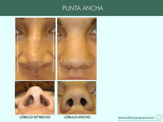 alteraciones_punta_ancha