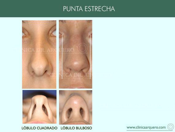 alteraciones_punta_estrecha