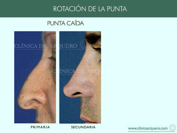 alteraciones_rotacion1