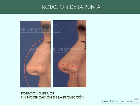 alteraciones_rotacion2