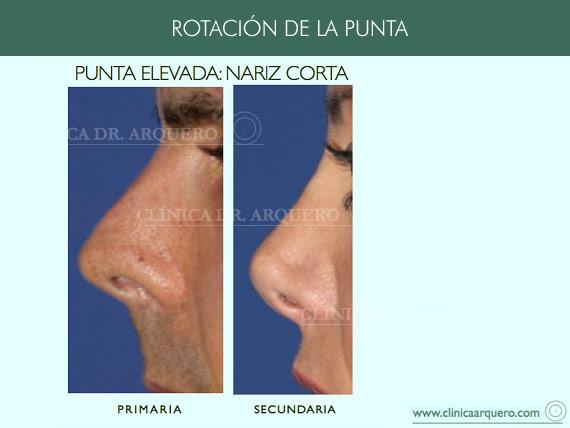 alteraciones_rotacion3