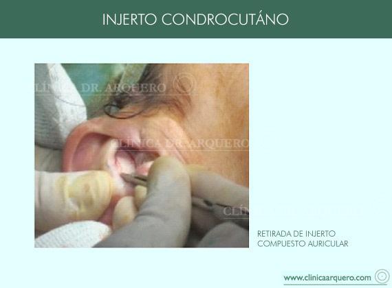 injerto_condrocutaneo