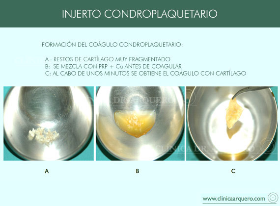 injerto_condroplaquetario