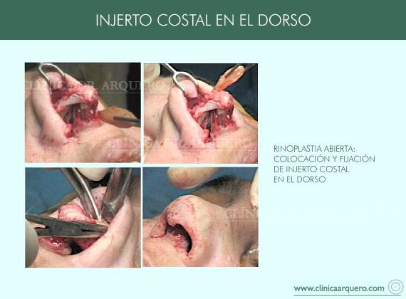 injerto_costal