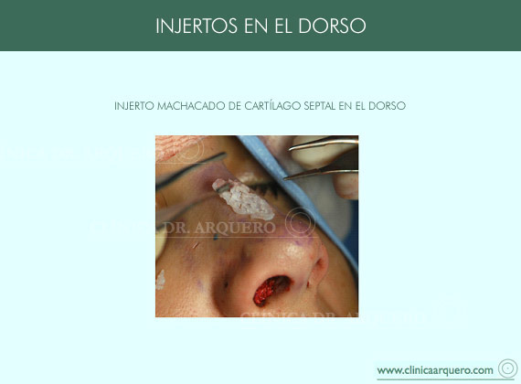 injerto_dorso1
