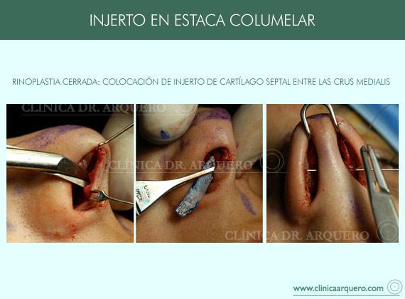 injerto_estaca_columelar2