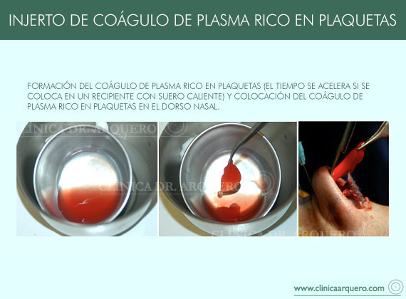 injerto_plama_plaquetas