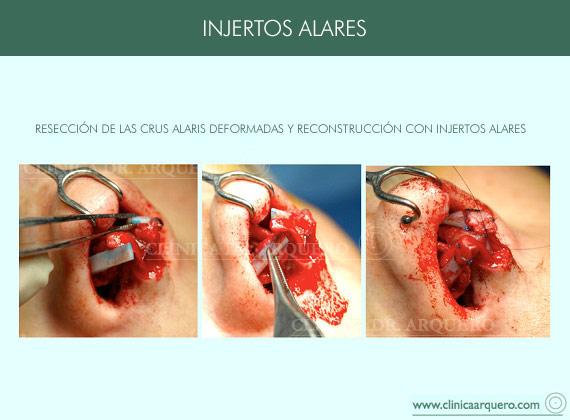 injertos_alares3